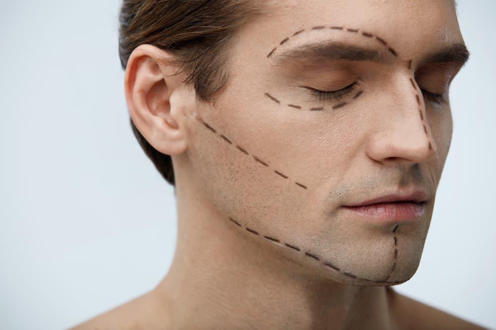 Immer mehr Männer greifen zu Schönheits-OPs