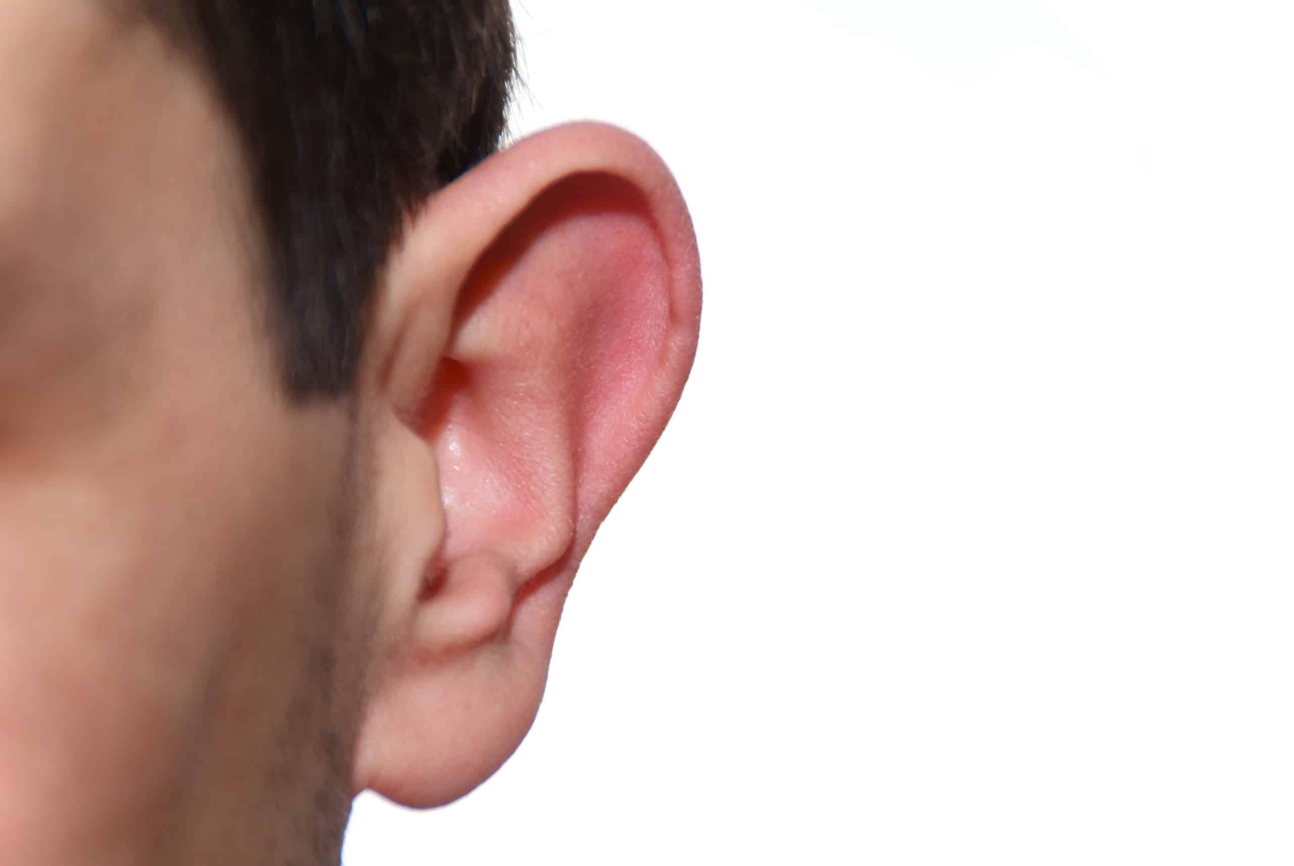 Die Ohrenkorrektur der Schönheits-OPs