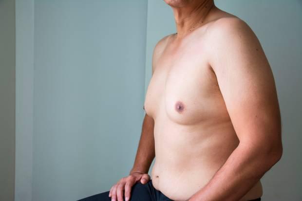 Die Brustverkleinerung / Gynäkomastie Behandlung